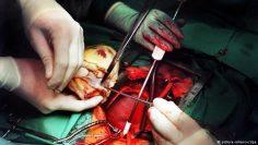 عملية القلب المفتوح