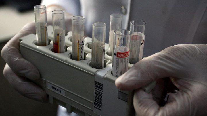 """اختبار بسيط للدم يتنبأ بـ """"ألزهايمر"""" قبل ظهوره بـ 8 سنوات"""